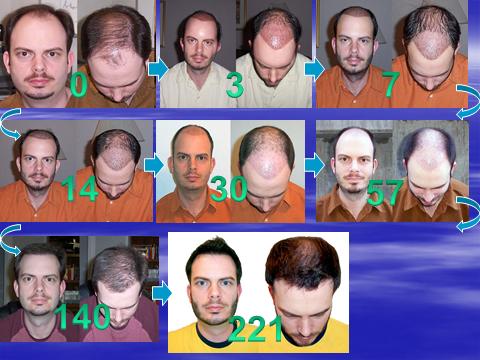 Последовательность роста волос день за днем, после пересадки волос