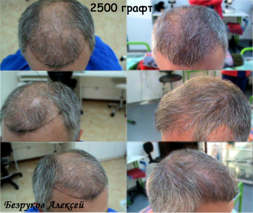 Пересадка волос в стамбуле цены