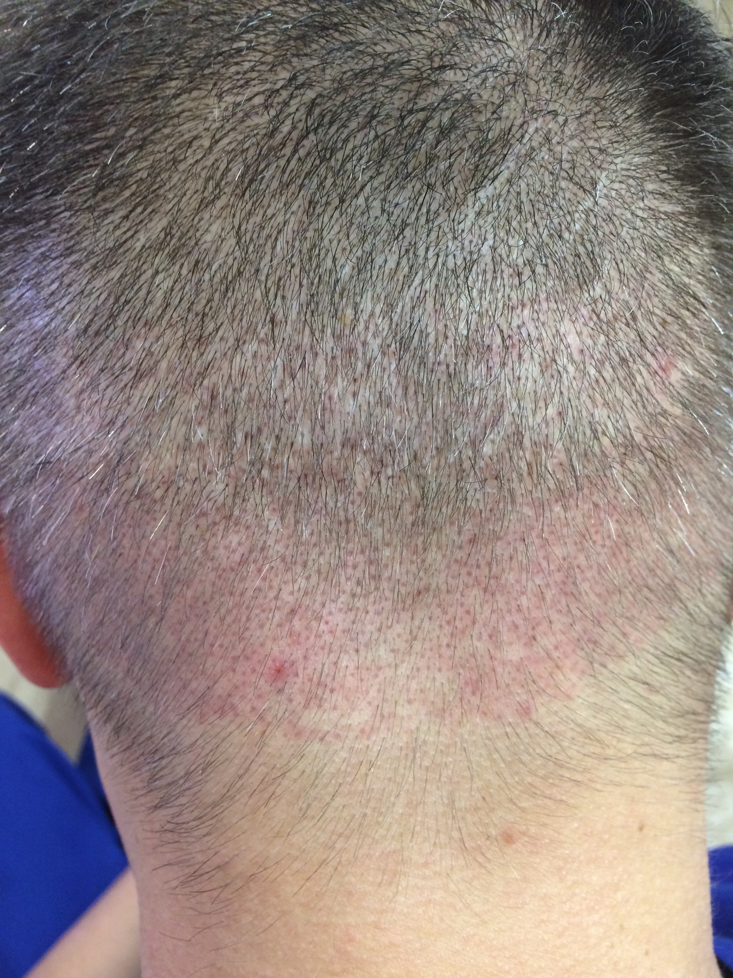Пересадка на тонкий волос