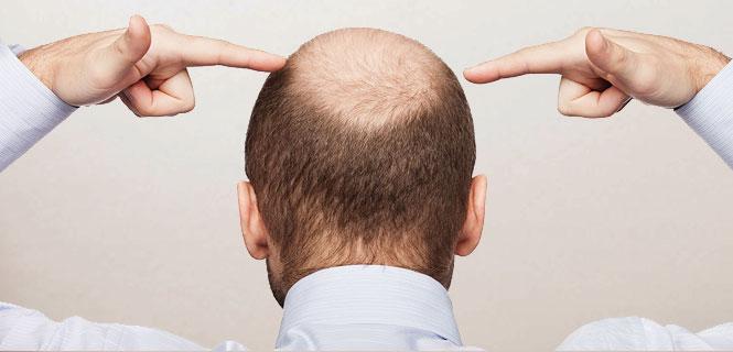 Выпадение волос при дефиците железа